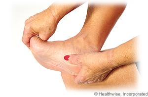 Running Injuries Series: Plantar Fasciitis