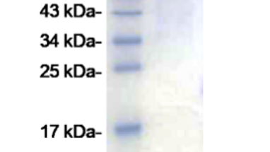 SARS-CoV-2 Spike S1 Protein (expressed in HEK293 cells)