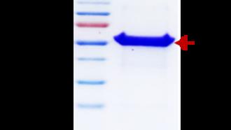Jo-1 (Human Histidy-tRNA Synthetase)