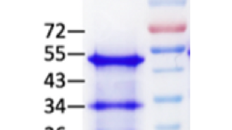 Human Beta 2 Microglobulin