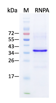 U1snRNP A (Human Small Nuclear Ribonucleoprotein Polypeptide A)