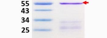 hPM20D1 (Human N-fatty-acyl-amino acid synthase/hydrolase)
