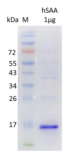 Human Serum Amyloid A1