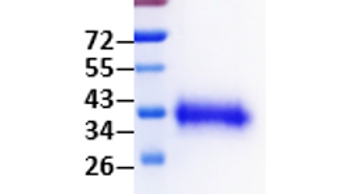 SARS-CoV-2 S1 Receptor Binding Domain (S1RBD) (expressed inHEK293 cells)