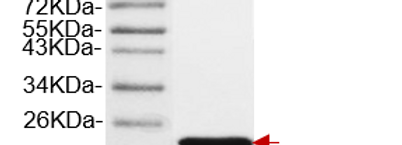 mFGF21, His-tag (Mouse Fibroblast Growth Factor 21 with His-tag )