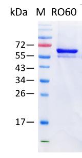 SSA/Ro60 (Human TROVE domain family member 2)