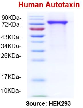 hATX/hENPP2 (Human Autotaxin)