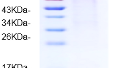Human Autotaxin (ATX/ENPP2)