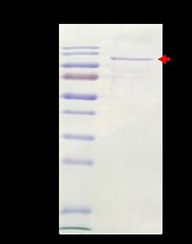 PL-12 (Human Alanyl-tRNA Synthetase)