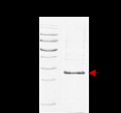 SmB/B' (Human Small Ribonucleoprotein Associated Protein B B')