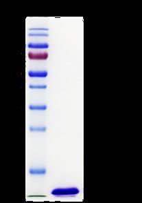 NT-proBNP (Human N-terminal B-type Natriuretic Peptide)