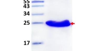 Human Fibroblast Growth Factor 19 (FGF-19), Tagless
