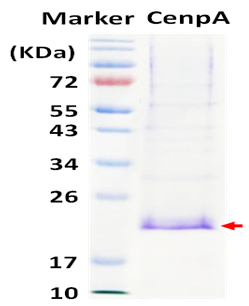 CENP-A (Centromere Protein A)