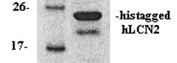 hLCN2/NGAL (Human Lipocalin 2)