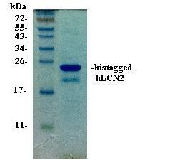 Lipocalin-2 (LCN2) protein