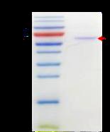 mPM20D1 (Mouse N-fatty-acyl-amino acid synthase/hydrolase)