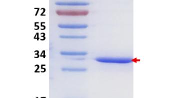 Human Galectin-3 (Gal-3)