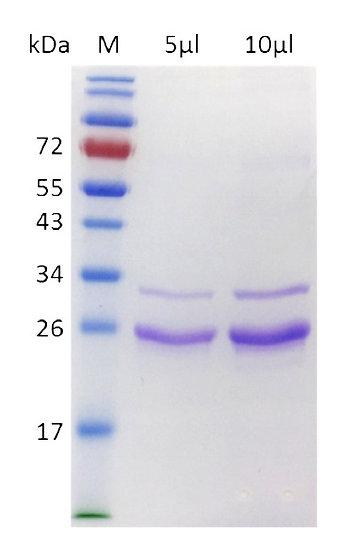 hFGF23 (Human Fibroblast Growth Factor 23, R179Q)