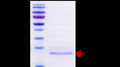 Human Fibroblast Growth Factor 2 (FGF-2)