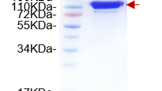 Scl-70 (DNA Topoisomerase I)