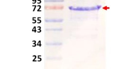 PmScl 75 (Exosome Component 9)