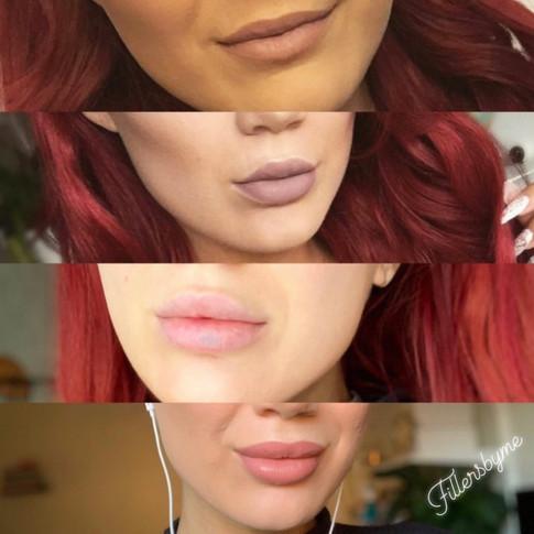 Läppar - före & efter