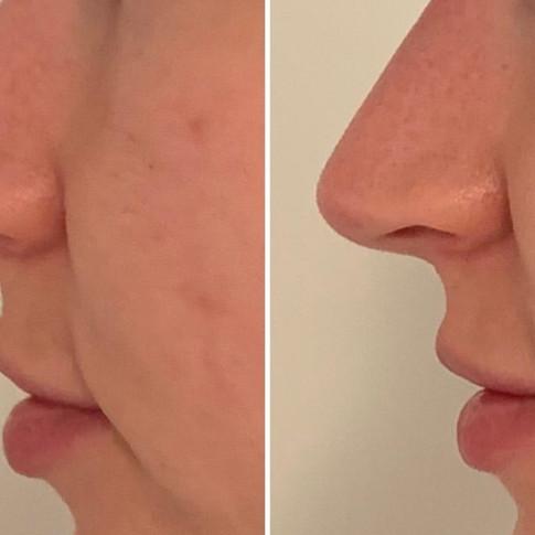 Näsa - före & efter