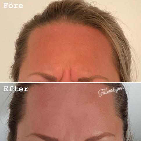 Argrynka (glabella) - före & efter