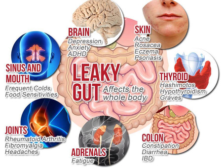 6 Signs Your Gut Needs a Little TLC