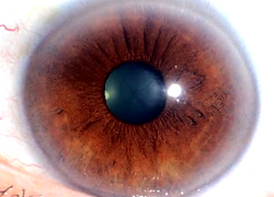 Iridology health analysis