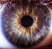 Holistic Iris analysis