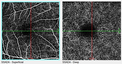 OCTA_Superficial-Deep-Capillaries.png