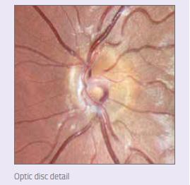 detaliu disc optic.png