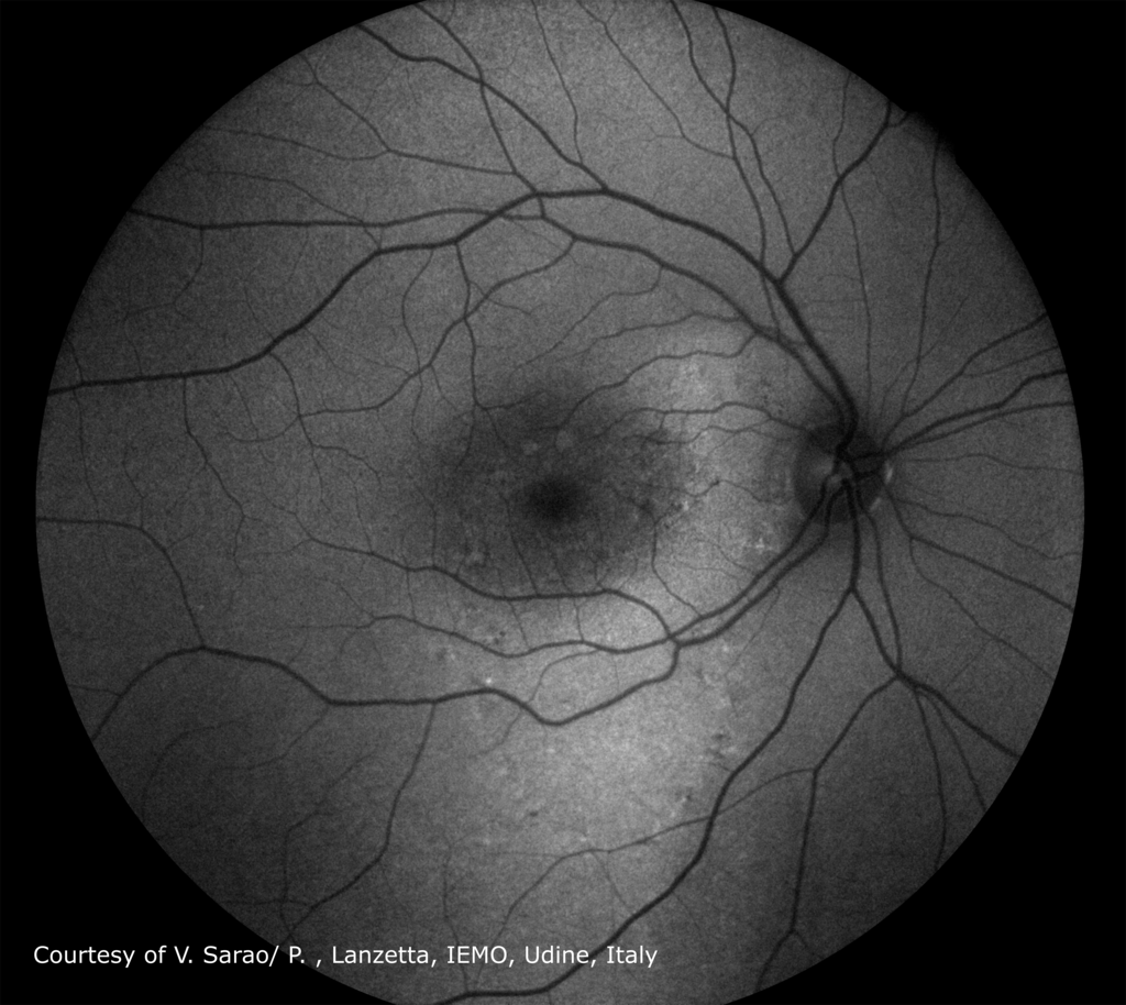 Central-Serous-Chorioretinopathy_AF-.png