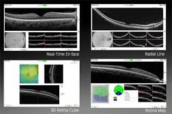 a-range-of-retina-scans