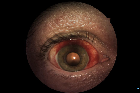 External Image: Subconjunctival Hemo