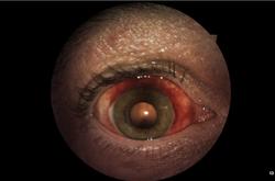External Image: Subconjunctival Hemo