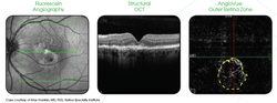 angio retina.png