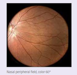 nasal peripheral field color 60.png