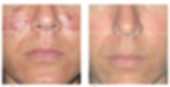 Chemical Peels for Rosacea