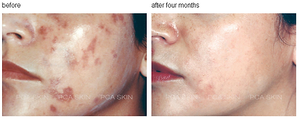 Chemical Peel for Dark Spots