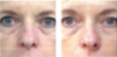 Chemical Peels for Wrinkles
