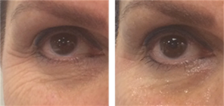 CoolLifting Treatment on Crowsfeet/ Eyes