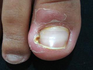 Granuloma piogênico (Carne Esponjosa)