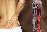 sciatica disc bulge nerve pain rhodes wentworth point concord meadowbank strathfield