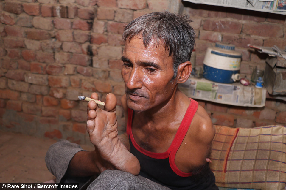 A man with no arms smoking a cigarette held between his toes