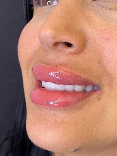 lips fillers Malmö