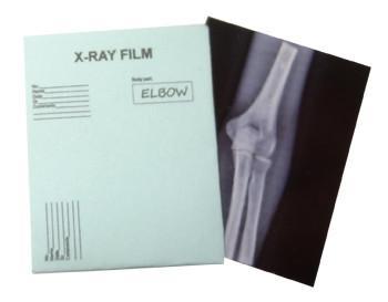 Xray Elbow $5