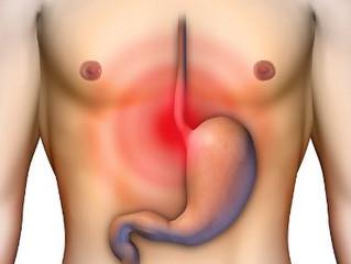 Los medicamentos para la supresión del ácido reducen el riesgo de cáncer en el esófago de Barrett