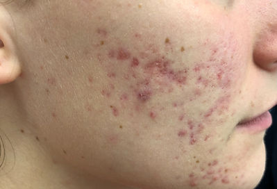 Acne | Spots | Acne Scars | Isotretinoin |